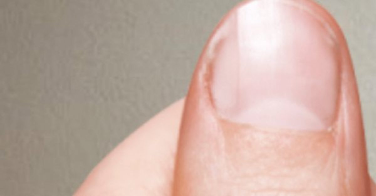 Do You Have A Half Moon Shape On Your Nails? This Is What Your Body ...