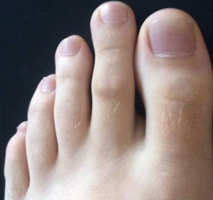 What Your Feet Say About Your Personality Jesus Daily